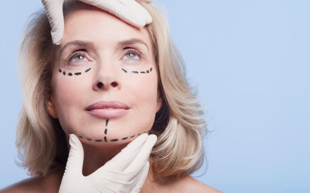 Complication facial lifting surgery — img 2